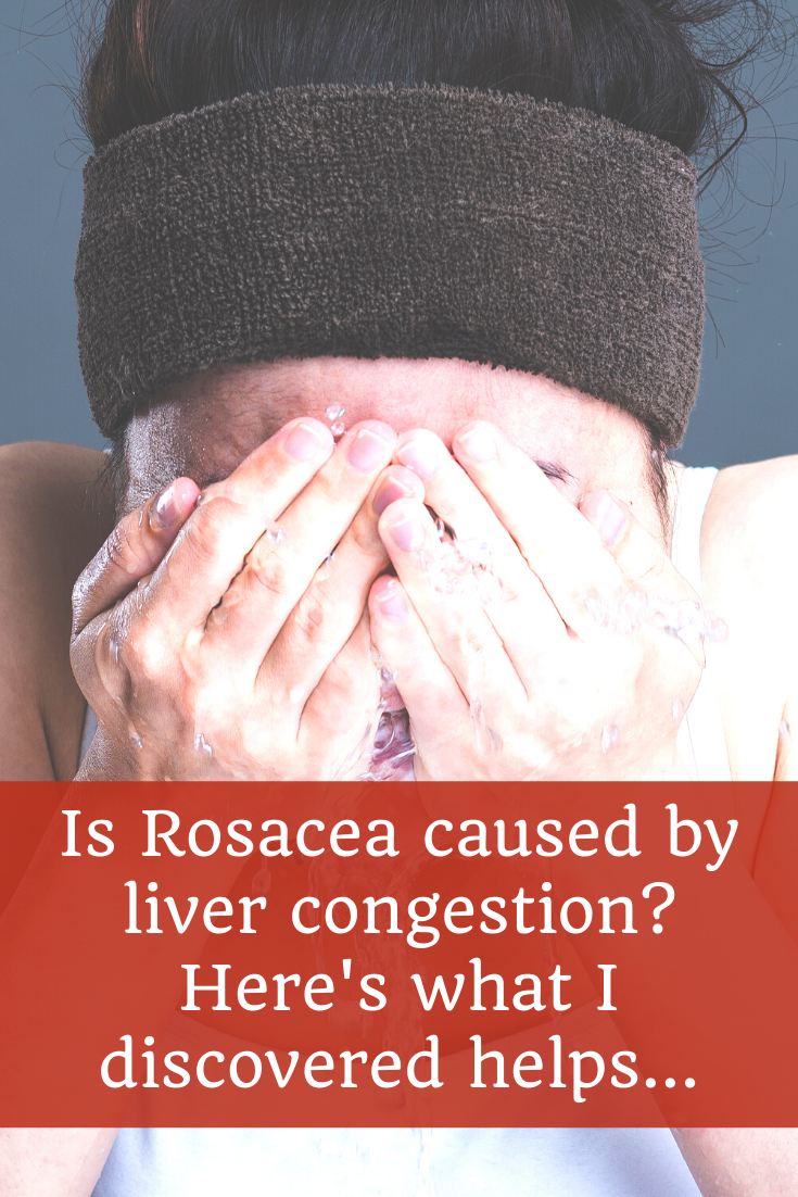 Is Rosacea caused by liver congestion... 4