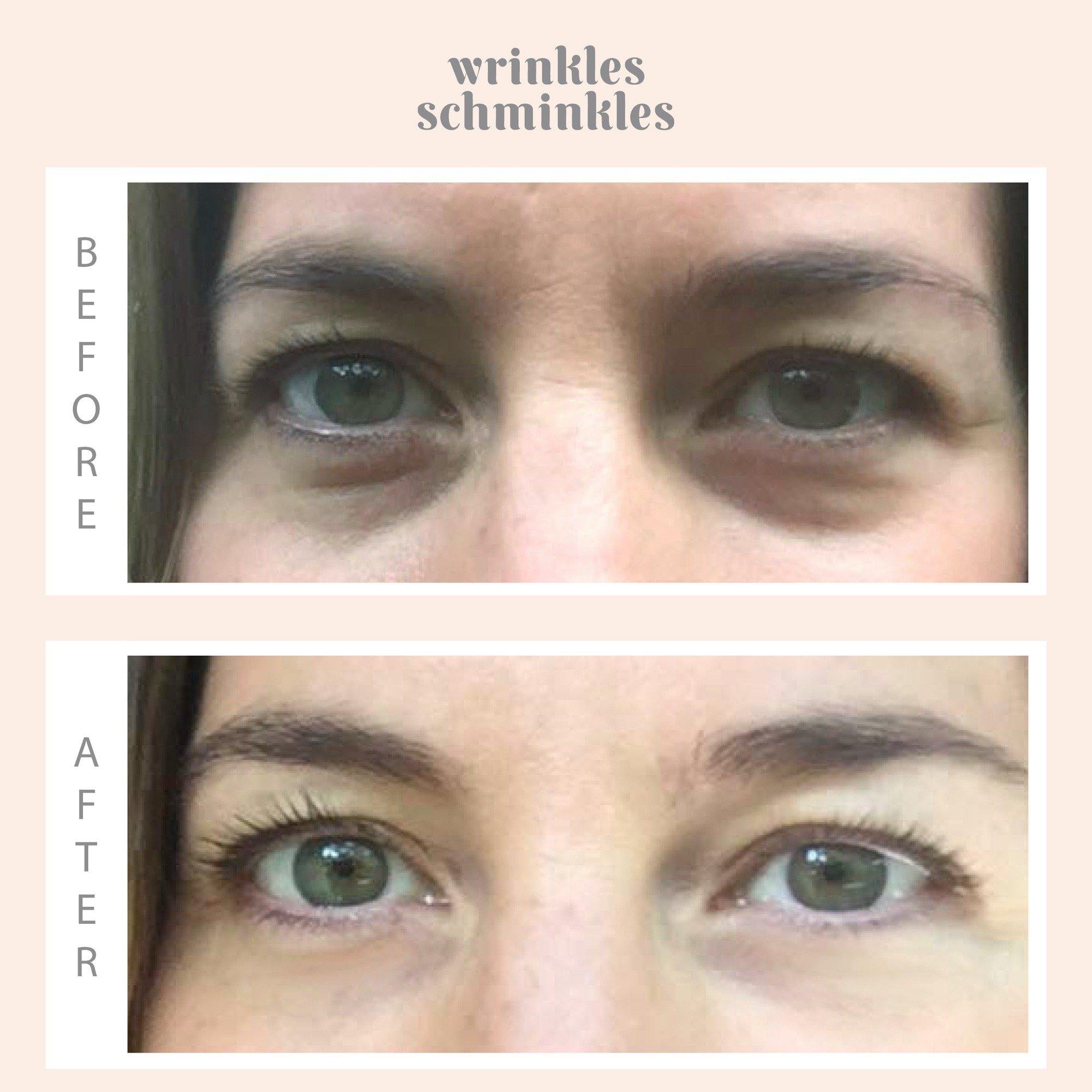 Wrinkles Schminkles; you look gorgeous girl! 2