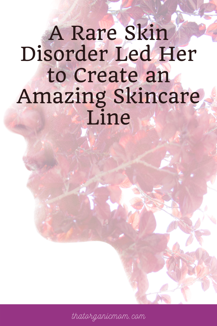 A Rare Skin Disorder Led Her to Create an Amazing Skincare Line 1