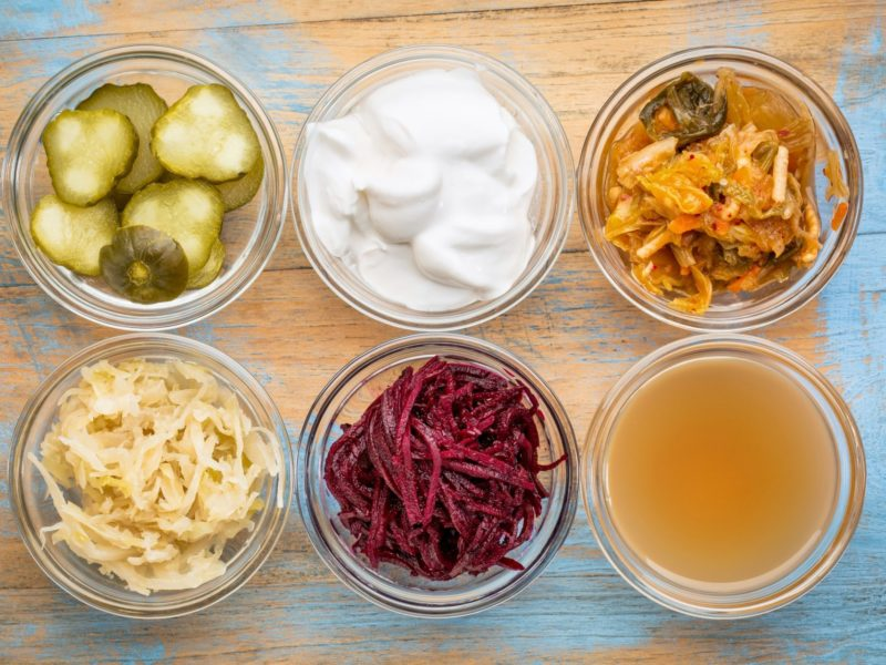 Improve Your Gut Health with The Probiotic Kitchen by Kelli Foster 1